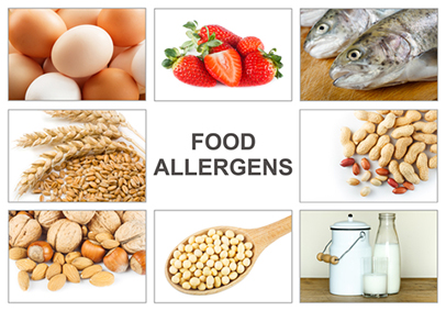 Food-allergens-poster